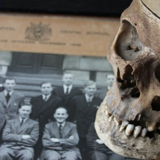 An Early 20thC Human Skull for Odontology & Medical Study from Guy's Hospital Dental School
